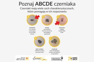 Program profilaktyki czerniaka w kamiennogórskich szkołach